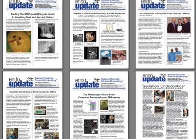Endo Update (content newsletter)